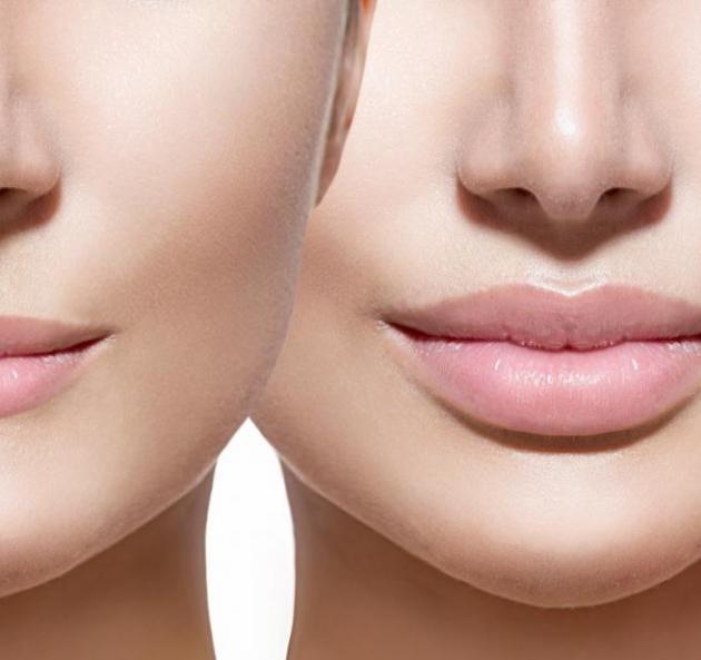 Увеличение губ, коррекция носогубных складок со скидками 15%! в Ростове-на-Дону
