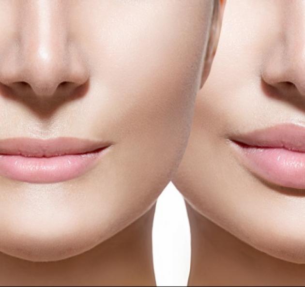 Увеличение/Омоложение губ без периода реабилитации препаратом Этермис-10% в Ростове-на-Дону