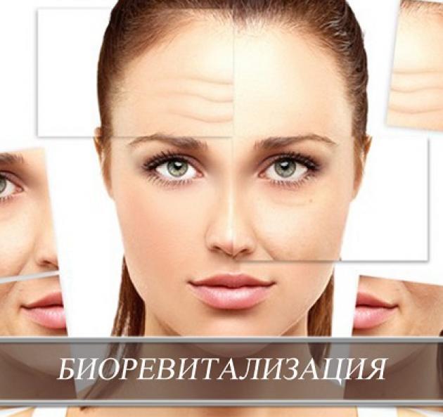 Биоревитализация за 6500! в Ростове-на-Дону